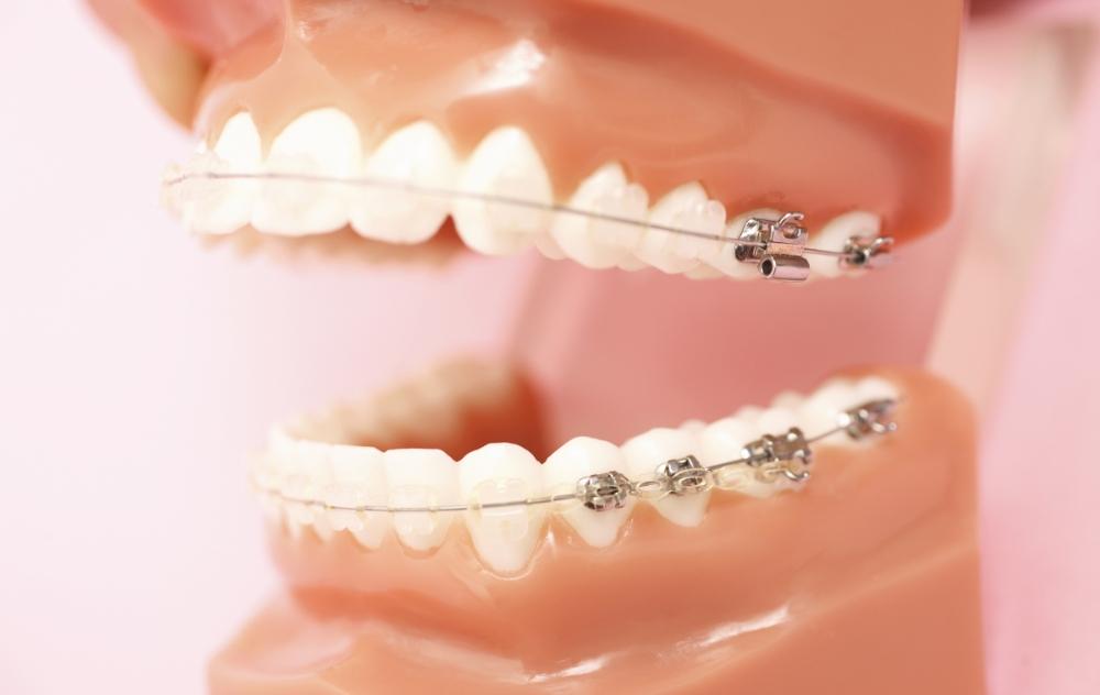 当院の矯正歯科治療方法